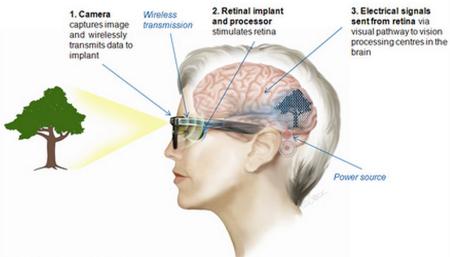 Bio Retina 2